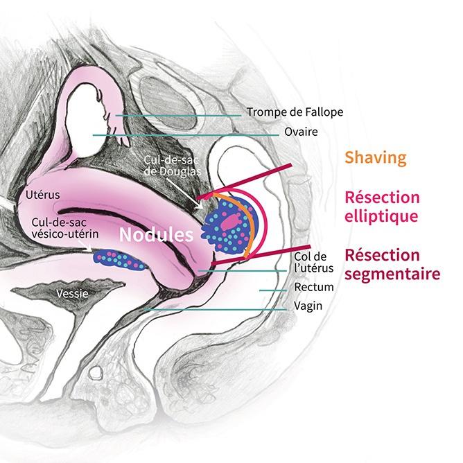 Centre Liégeois d'Endométriose « La chirurgie